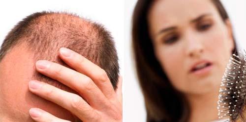 Recomendaciones para la pérdida del cabello